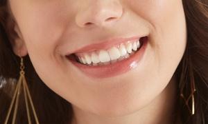 地域密着型の歯科医院。より天然に近い歯で、あなた本来の笑顔を≪セラミックスインレー/他1メニュー≫ @たかはしデンタルクリニック