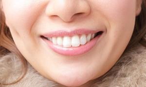 笑顔が光る、キレイな歯へ≪リンガル(裏)orラビアル(表)か選べる部分矯正(上前歯6本)+ホワイトニング/他1メニュー≫ @IK医科歯科クリニック