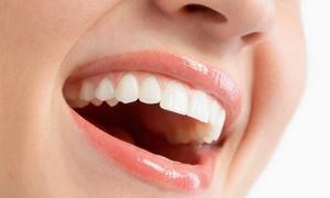 学校・職場でも目立ちにくい矯正で、美しい歯並びへ≪コラボ歯列矯正(ハーフリンガル&マウスピース)≫ @アルデブラン・デンタルクリニック大阪梅田院