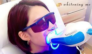 【歯科医院監修/2枚利用可】歯科医院が監修・開発したセルフホワイトニング。高リピート率を誇る人気店。白い歯へ導き、口内環境も整えて健康な歯を維持《LEDセルフホワイトニング30分照射/来店1回》