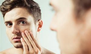 最大61%OFF メンズ脱毛・ヒゲSET(顔~首)3回/他2メニュー|男性限定|Salon 105|広島市南区 広島駅