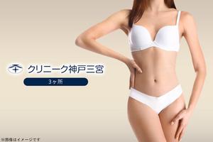 【89,800円】≪たるみの原因でもあるSMAS筋膜に直接アプローチ!たるみ・シワを改善し、肌にハリをもたらします!腹部、背中、太もも、二の腕から選択可能/選べる3ヶ所 HIFU痩身≫